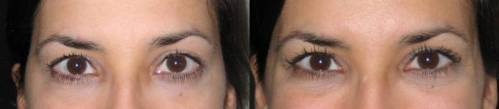 before (left) and after application